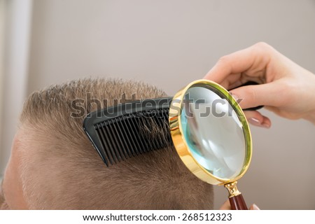Close-up Dermatologist Looking At Patient's Hair Through Magnifying Glass - stock photo