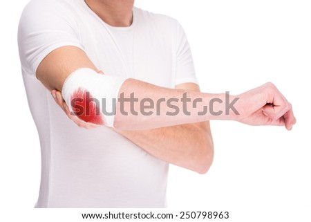 Close-up hand of man, injured painful elbow with white bloody bandage. - stock photo