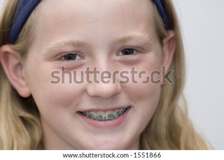 Close up head shot of young girl with braces. - stock photo