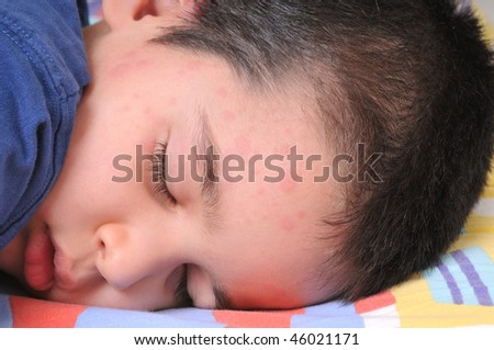 Close up image of a little cute boy sleeping in his bed suffering severe urticaria, netlte rash - stock photo