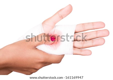 Close-up image of a white bandage wrapped on injured arm. - stock photo