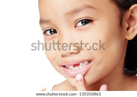 Close up of a cute girl showing a missing teeth. - stock photo