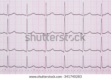 Close up of a Electrocardiograph also known as a EKG or ECG graph - stock photo