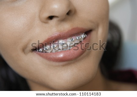 Close-up of a female wearing brackets in teeth - stock photo