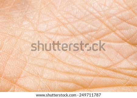 Close-up of a person with dry skin on the heels of the macro - stock photo
