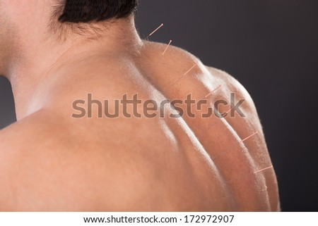 Close-up Of A Shirtless Man With Acupuncture Needles On Back - stock photo