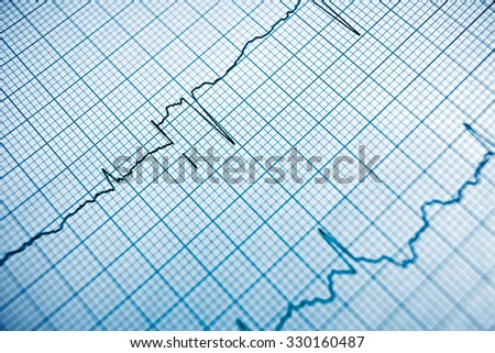 Close up of an electrocardiogram in paper form. - stock photo