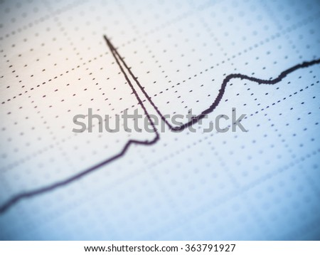 Close up of an single beat electrocardiogram analysing for heart disease problem. - stock photo