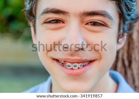 Metal Smile Thai Teen 100