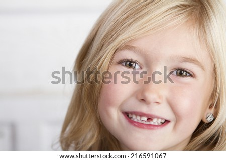 Close up of child missing her top front tooth - stock photo