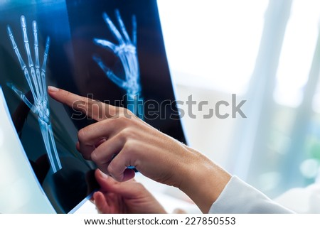 Close up of female doctors pointing at x-ray sheet in clinic. - stock photo