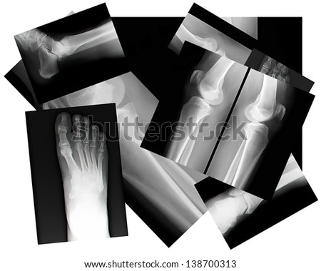 close up of human leg bone X-rays - stock photo