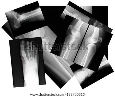 close up of human leg bone X-rays - stock photo