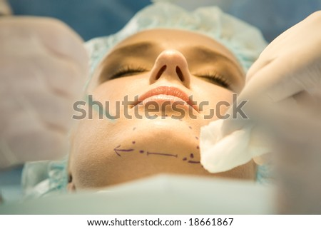 Close-up of patient?s chin with marks before operation - stock photo
