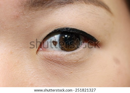close up of suspicious mole on asian woman eye - stock photo