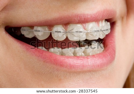Close-up of teeth with braces. - stock photo
