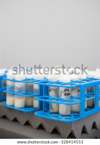 Close up of test tubes in the laboratory - stock photo