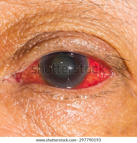 close up of the acute glaucoma during eye examination. - stock photo