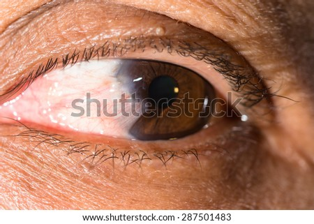close up of the advance pterygium during eye examination. - stock photo