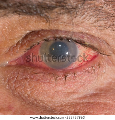 close up of the bee stinger in cornea during eye examination. - stock photo