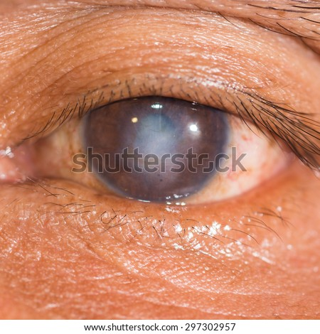 close up of the corneal scar during eye examination. - stock photo