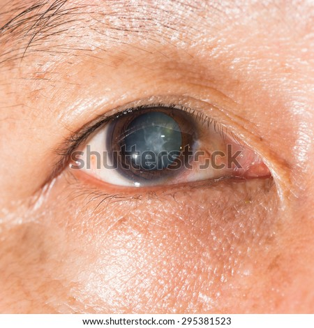 Close up of the cortical cataract during eye examination. - stock photo