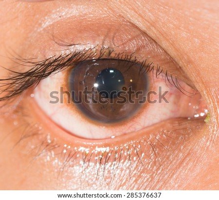Close up of the metallic corneal foreign body during eye examination. - stock photo