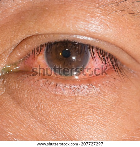 Close up of the metallic foriegn body at left cornea during eye examination. - stock photo