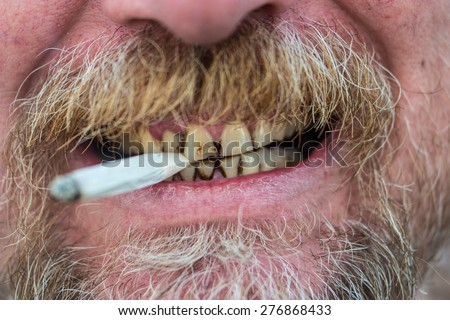 Close up of the mouth of a man with a beard and mustache smoking a cigarette, clamping it between tobacco stained teeth - stock photo