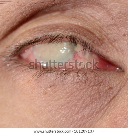 Close up of the phthisis bulbi during eye examination. - stock photo