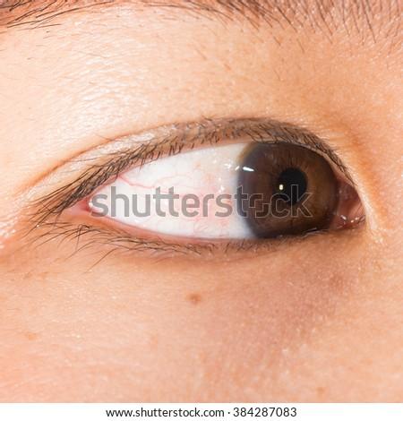 Close up of the pinguecula during eye examination. - stock photo