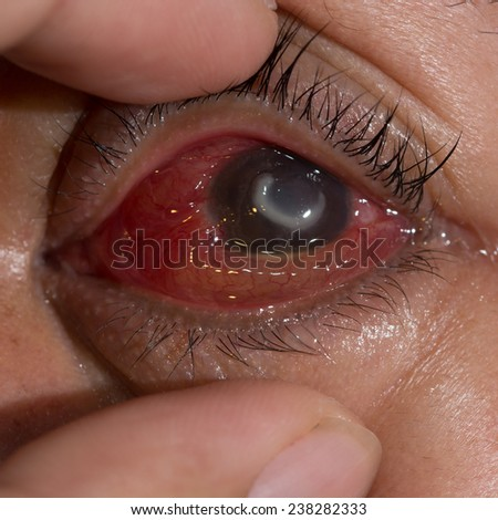 Close up of the severe bacterial corneal ulcer during eye examination. - stock photo