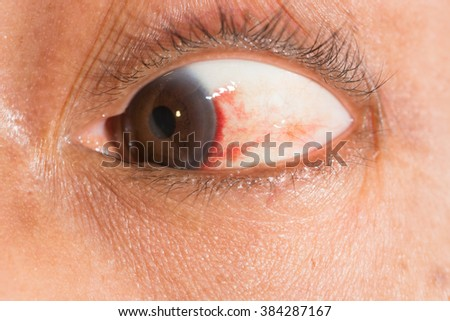 Close up of the subconjunctival Hemorrhage during eye examination. - stock photo