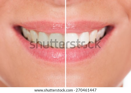 Close-up Of Woman Teeth Before And After Whitening - stock photo