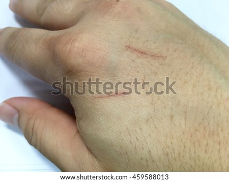 Close up of wound on the hand skin - stock photo