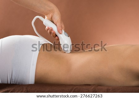 Close-up Of Young Woman Receiving Laser Treatment On Back - stock photo