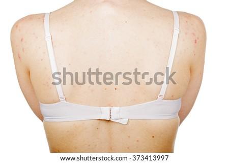 Close up photo of acne skin on female back - stock photo