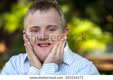 Close up portrait of handicapped boy with hands on face outdoors. - stock photo