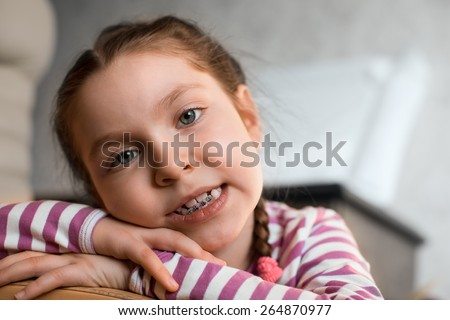Close up portrait of Smiling girl showing dental braces. - stock photo