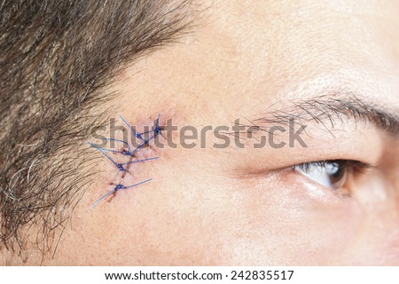 Close-up stitched wounds after skin biopsy on the man's face - stock photo