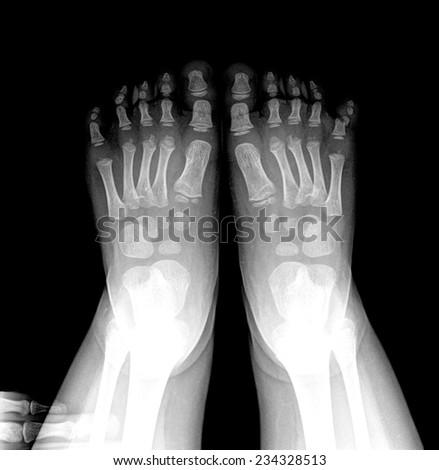 closeup image of classic xray image of chile feet - stock photo