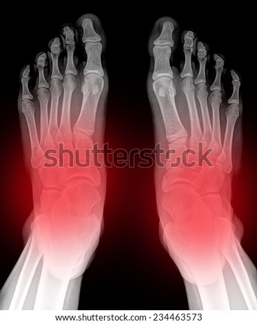 closeup image of classic xray image of feet - stock photo