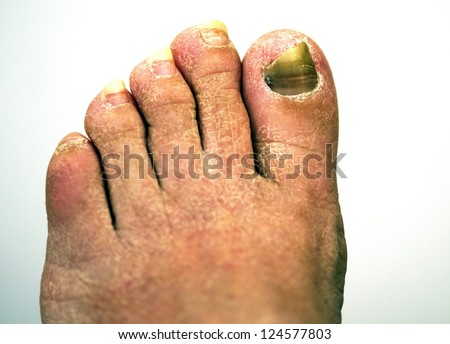 closeup of a foot with arthritis, damaged nails because of fungus and athlete's foot - stock photo