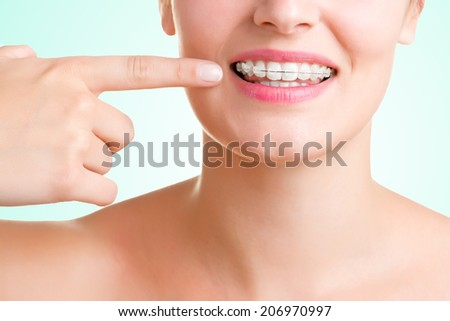 Closeup of a mouth with braces on teeth, isolated in green - stock photo