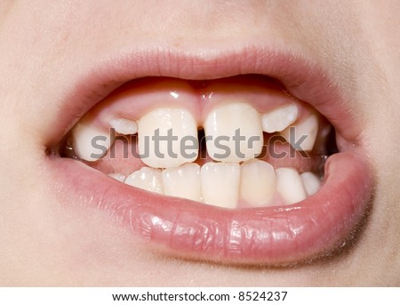 Closeup of a young boy's mouth with permanent teeth growing in. - stock photo
