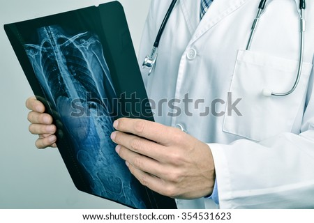 closeup of a young caucasian doctor man observing a skeleton radiograph - stock photo