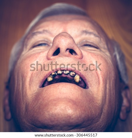Closeup of an old man face with ugly teeth. - stock photo