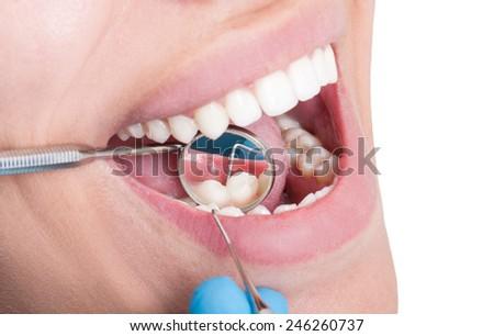 Closeup of dentist mirror reflecting lower teeth - stock photo