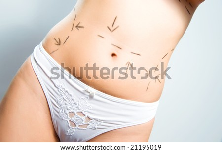 Closeup photo of a Caucasian woman's abdomen  marked with lines for abdominal cellulite correction cosmetic surgery - stock photo