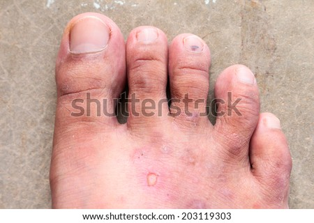 closeup skin athlete's foot psoriasis fungus, hong kong foot, foot disease - stock photo
